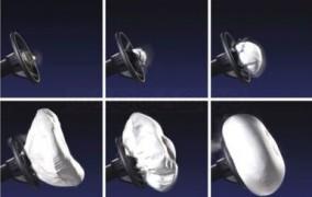 Čo je to airbag a ako funguje